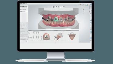 n-piece_Orthodontics